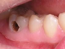 Không ai ngờ sâu răng cũng có thể gây chết người
