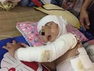 Bé gái 2 tuổi bỏng toàn thân, phẫu thuật 4 lần/tháng vì hóa chất thông cống dính vào người