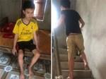 Chàng trai người cá lạc quan ở Hà Nội: Nhìn thấy bộ dạng của mình, nhiều người hỏi sao không chết đi, sống để làm gì?-17