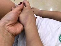 Xôn xao bé trai 3 tuổi ở Hải Dương bị giáo viên đánh bầm tím chân tay
