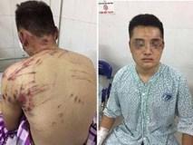 Côn đồ hành hung dã man lúc nửa đêm, 4 người ở Hà Nội nhập viện