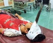 Bé 12 tuổi bị dao cắm giữa trán gây chấn thương sọ não