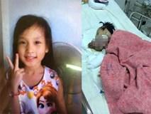 Chuỗi ngày đau đớn của bé gái 11 tuổi, mồ côi cha, bị khối u quái ác che kín mặt