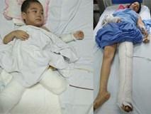 """Cậu bé mất 2 chân sau vụ sạt lở đất ở Sơn La: """"Mẹ ơi cứu con"""""""