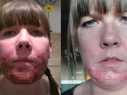 Đi lột da mặt, người phụ nữ nhận cái kết thảm thương khi mặt bị phồng rộp và để lại sẹo suốt đời