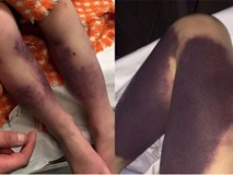 Từ vết bầm nhỏ, chân cô bé 4 tuổi đổi màu đen và suýt phải cưa bỏ vì một căn bệnh phổ biến