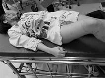 Dù mang thai 2 tháng, cô gái vẫn bị bạn trai giàu có đánh đập tàn nhẫn, đến mức phải nhập viện