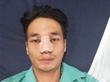 Hết Tùng Sơn lại tới Lệ Rơi bất ngờ lộ ảnh phẫu thuật thẩm mỹ