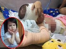 Cơ thể biến dạng của bé gái 5 tuổi bị bỏng cồn toàn thân
