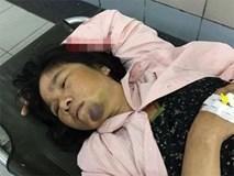 Người phụ nữ bán tăm bông bị đánh oan vì nghi bắt cóc phải cấp cứu do liên tục hoảng loạn