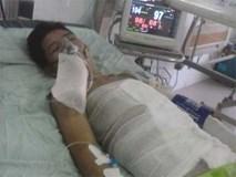 Cháy xưởng sản xuất bánh kẹo ở Hà Nội: 2 bệnh nhân đang cấp cứu vẫn hôn mê, người thân đứng ngồi không yên