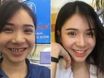 Lộ ảnh Thanh Bi hồi 'mài răng' chuẩn bị bọc sứ, nụ cười 'lởm chởm' quá bá đạo