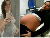 Mẹ bầu 9 tháng bị bắn xuyên tử cung, em bé vẫn sống sót một cách thần kỳ
