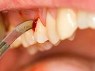 Những dấu hiệu ở răng cảnh báo nguy cơ ung thư: Thêm một lí do phải đánh răng sạch