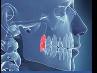 Khi nào bạn nên nhổ răng khôn?