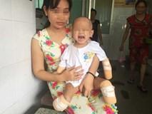 Xót xa bé gái 2 tuổi bị đoạn tứ chi vì viêm não mô cầu