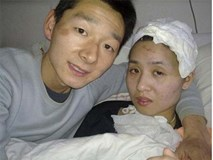 Bạn gái ngây ngô như trẻ lên 3 sau tai nạn, chàng trai vẫn cưới về chăm sóc và cái kết xúc động sau 7 năm
