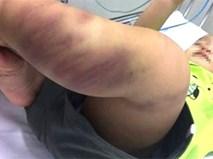 Bà ngoại bé trai 1 tuổi bị bạo hành: Sao họ độc ác thế?