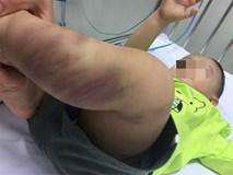 Bé trai 1 tuổi bị bạo hành dã man ở Hà Nội đã rơi vào tình trạng hôn mê sâu