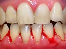 Chảy máu chân răng: Dấu hiệu cảnh báo bệnh ung thư