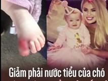 Giẫm phải nước tiểu chó, bé 8 tháng tuổi phải cắt bỏ gần hết ngón chân