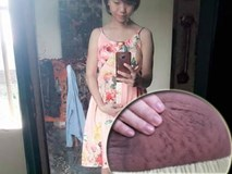 """Bà mẹ 24 tuổi chia sẻ """"vết tích"""" bụng rạn 13 ngày sau sinh nhìn đến xót xa"""