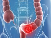 Ung thư đại tràng thường phát hiện muộn: Đột phá nhờ xét nghiệm máu?