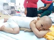 Con gái 16 tháng tuổi bị bỏng, mẹ bôi kem đánh răng làm mát nhận cái kết đau lòng