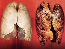Ung thư di căn giai đoạn 4, phổi đen như bồ hòng gác bếp vì làm điều này hơn 30 năm