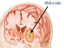 8 dấu hiệu tố cáo có khối u đang lớn dần trong não bạn