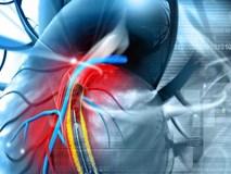 Bệnh mạch vành có thể khiến bạn nhồi máu cơ tim: Những triệu chứng phải để ý ngay kẻo muộn