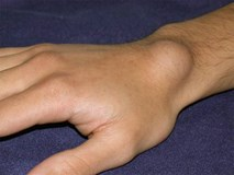Bỗng xuất hiện cục nổi trên cổ tay: Đừng bỏ qua vì đó là dấu hiệu cảnh báo bệnh vô cùng hãi hùng