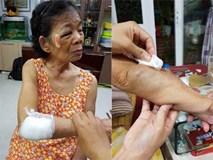 Hà Nội: Tài xế va chạm với cụ bà sau đó lấy lý do lùi xe rồi bỏ chạy