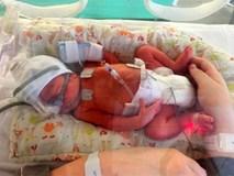 Để cậu bé này được ra đời, bố mẹ em đã phải đau lòng đánh đổi 2 mạng sống khác
