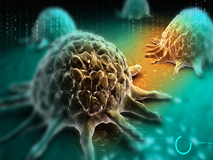 7 dấu hiệu cảnh báo ung thư mà 90% mọi người thường bỏ qua