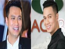 """Fan tiếc nuối khi sao Việt """"xóa sổ"""" răng khểnh làm mới hình ảnh"""