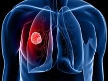 Xét nghiệm chỉ 70.000 đồng giúp chẩn đoán nhanh ung thư phổi: Hy vọng cho hàng triệu người
