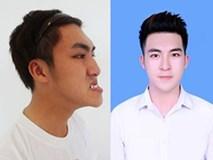 Sốc: Chàng trai Quảng Ninh mặt lưỡi liềm giờ đây đẹp như hotboy xứ Hàn