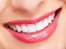 1 quả chanh - 3 cách tẩy trắng răng cực hiệu quả ai cũng nên biết
