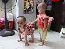 """Em bé đi bằng """"4 chân"""", sống nhờ vào những chiếc bao cao su và băng vệ sinh"""