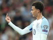 'Trò đùa' ngu ngốc có thể khiến Alli lỡ trận mở màn World Cup 2018