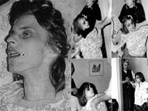 Câu chuyện đầy ám ảnh của cô gái trẻ Anneliese Michel, nguyên bản Emily Rose trong bộ phim đình đám của Hollywood