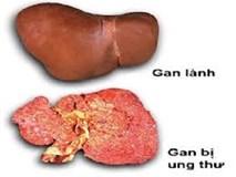 GĐ Bệnh viện 108 chỉ rõ nguyên nhân hàng đầu khiến Việt Nam có tỷ lệ mắc ung thư gan cao