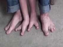Khoảnh khắc bé trai 5 tuổi có bàn chân kỳ lạ bước đi khiến ai cũng xót xa