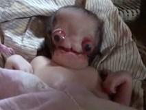 Sinh con tại nhà, bố mẹ thất kinh khi đứa bé ra đời mang gương mặt người ngoài hành tinh