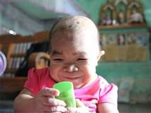 Cô gái 9X mang hình hài đứa trẻ lên 2, nuôi hơn 20 năm mãi không thể lớn