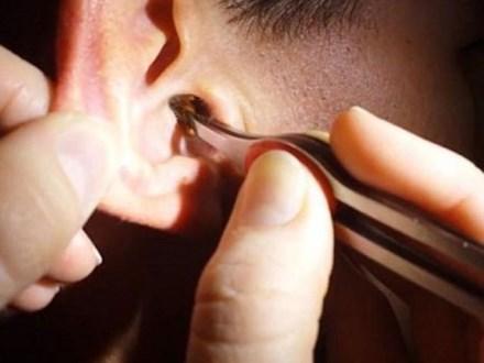Cận cảnh màn lấy ráy tai siêu khủng khiến người xem phải