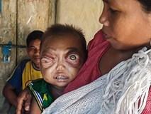 Bé 2 tuổi mắc bệnh lạ khiến mắt lồi như muốn nổ tung