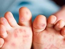 Nuốt đau, chảy nước dãi là dấu hiệu sớm của bệnh tay chân miệng