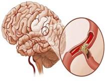 Mạch máu thông thì cơ thể khỏe: GS nổi tiếng khuyên bạn 5 điều nên làm để tránh tử vong
